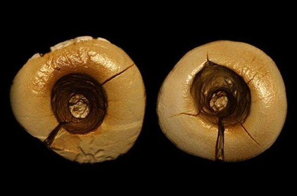 Dientes perforados con rocas y rellenos con alquitrán revelan cómo era la odontología hace 13 mil años - 1