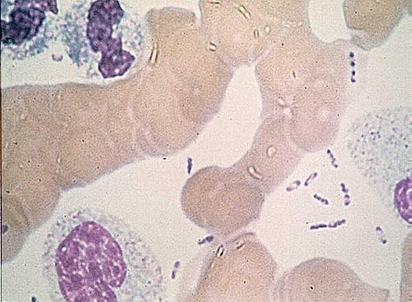 Yersinia pestis, la bacteria que causó la enfermedad.